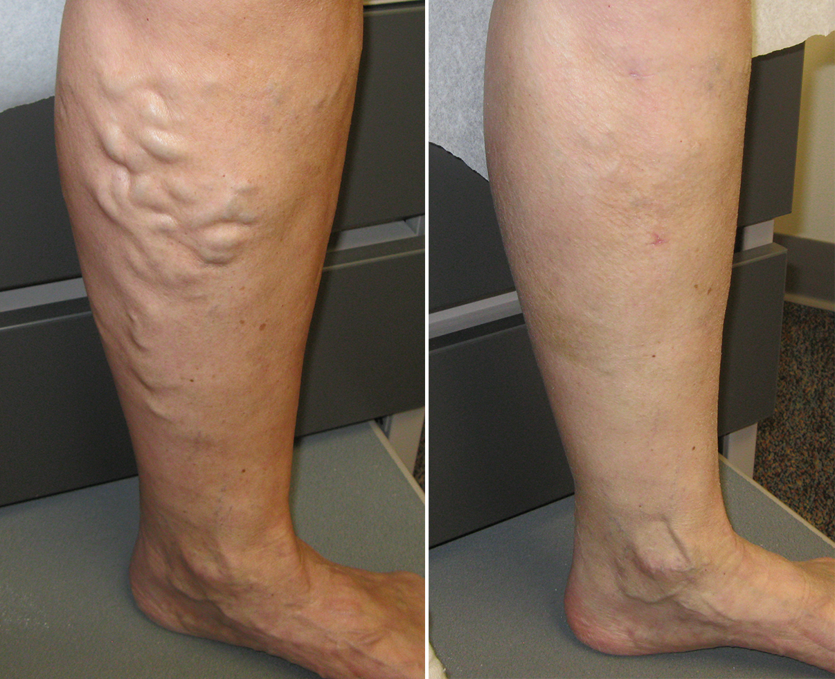 What to Expect From Varicose Veins Treatment